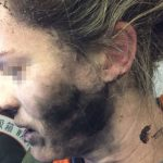 Woman injured after headphones explode on flight. Could this happen to you?